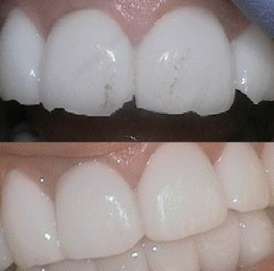 veneers chipped
