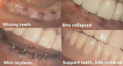 Mini_dental_implants