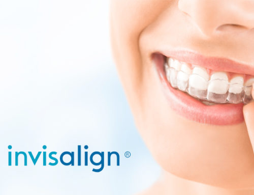 FREE 3D Scan for Invisalign Plus Outcome Simulation!